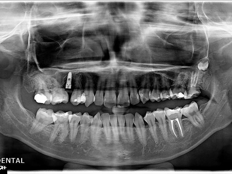 植牙案例鄭小姐-2