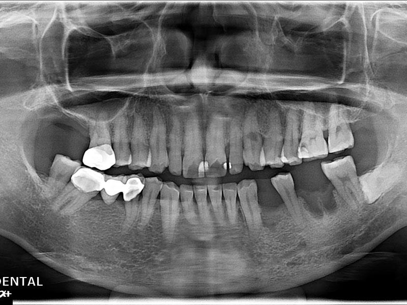 植牙-許振國-1
