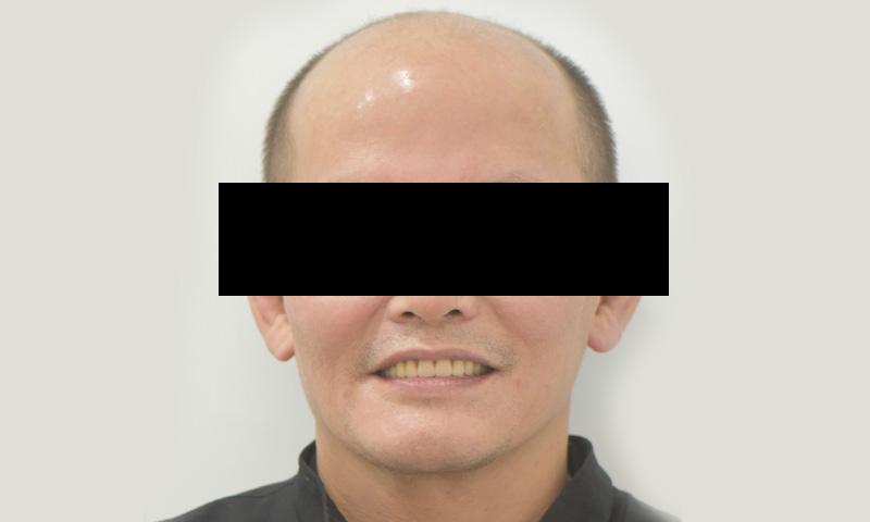 植牙-陳志成-6-2