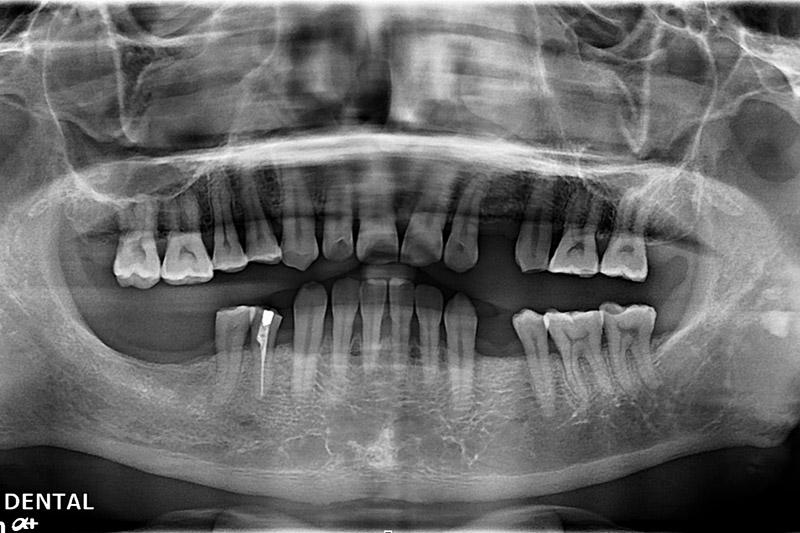 植牙案例-陳呈川-1