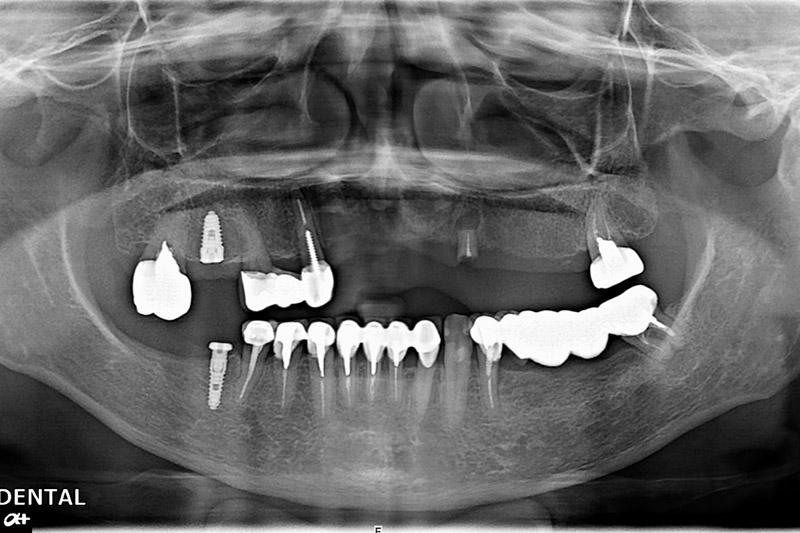 植牙案例-陳翠琳-2