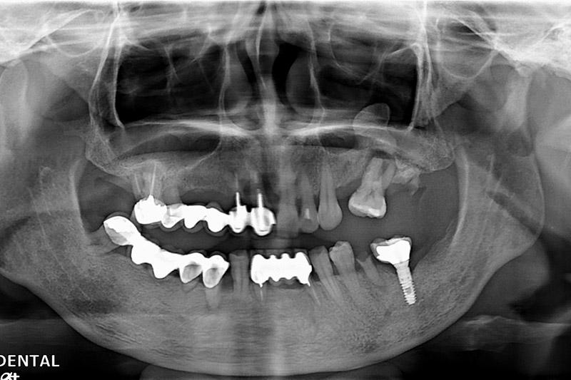 植牙案例-陳雪英-1