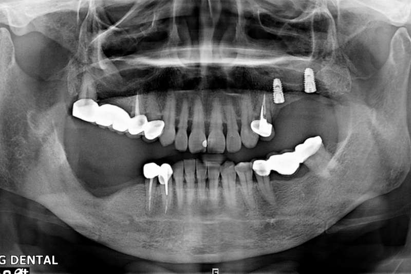 植牙案例-王香-1