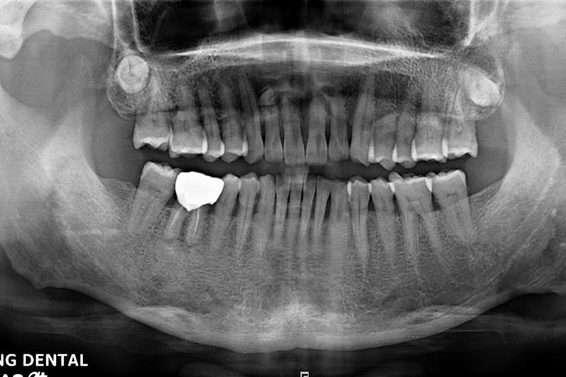 植牙-黃正雄-1